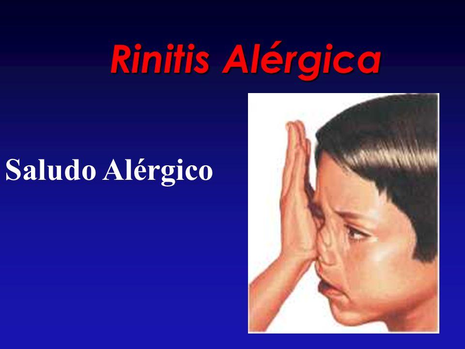 Rinitis Alérgica Saludo Alérgico