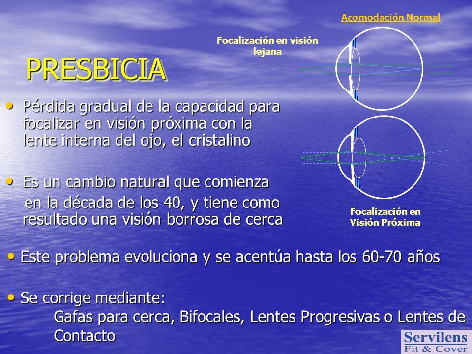 Acomodación Normal Focalización en visión lejana Focalización en Visión Próxima PRESBICIAPRESBICIA Pérdida gradual de la capacidad para focalizar en v