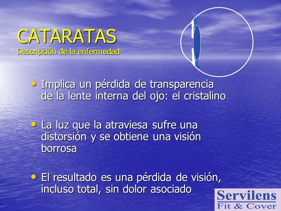 Implica un pérdida de transparencia de la lente interna del ojo: el cristalino Implica un pérdida de transparencia de la lente interna del ojo: el cri