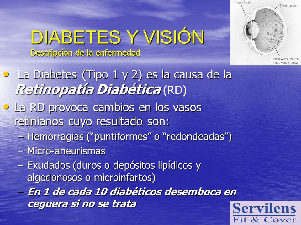 La Diabetes (Tipo 1 y 2) es la causa de la Retinopatía Diabética La Diabetes (Tipo 1 y 2) es la causa de la Retinopatía Diabética (RD) La RD provoca c
