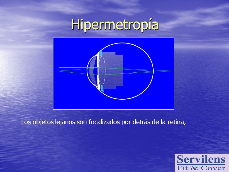 Hipermetropía Los objetos lejanos son focalizados por detrás de la retina,