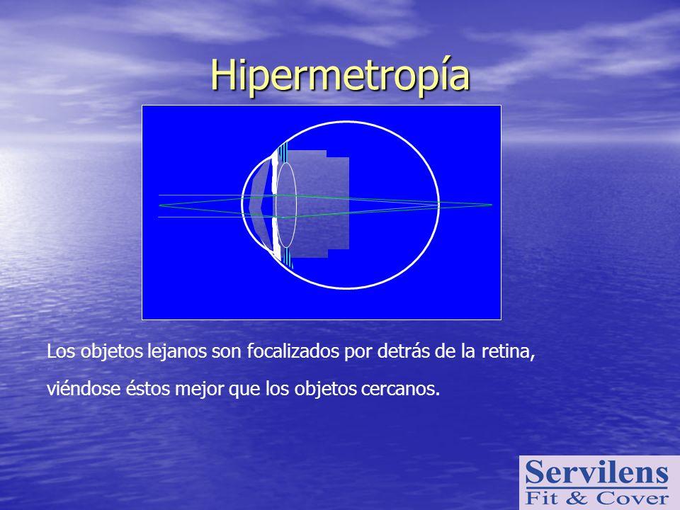 Hipermetropía viéndose éstos mejor que los objetos cercanos.