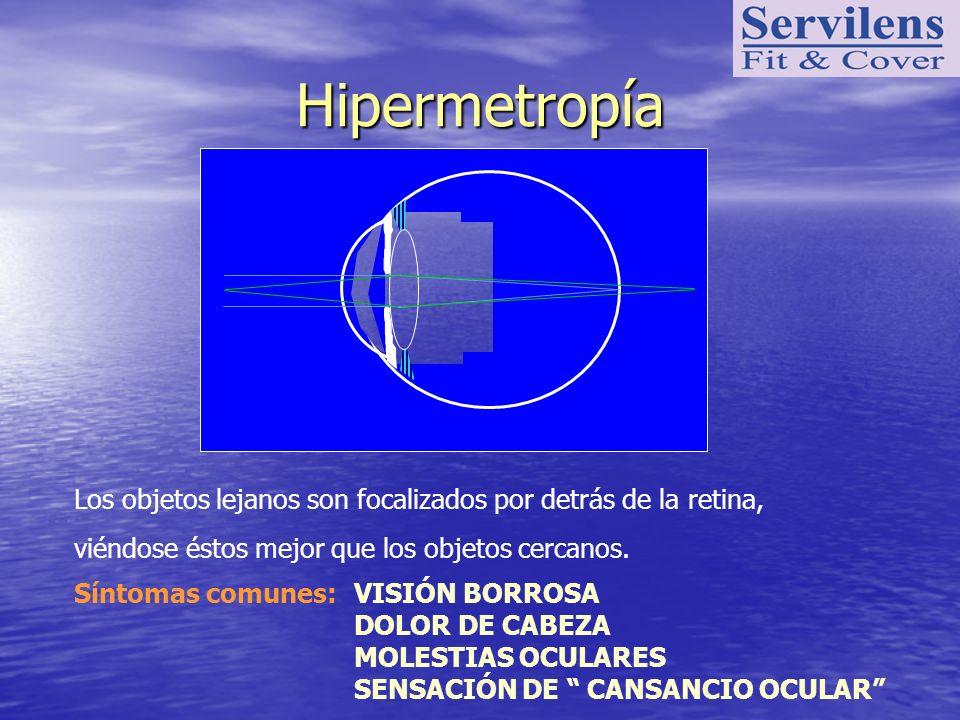Hipermetropía Síntomas comunes:VISIÓN BORROSA DOLOR DE CABEZA MOLESTIAS OCULARES SENSACIÓN DE CANSANCIO OCULAR Los objetos lejanos son focalizados por