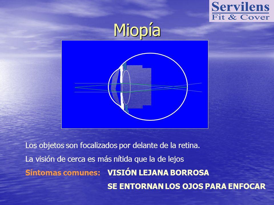 Miopía Los objetos son focalizados por delante de la retina. La visión de cerca es más nítida que la de lejos Síntomas comunes:VISIÓN LEJANA BORROSA S