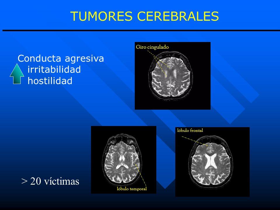 TUMORES CEREBRALES lóbulo frontal Giro cingulado Conducta agresiva irritabilidad hostilidad lóbulo temporal > 20 víctimas