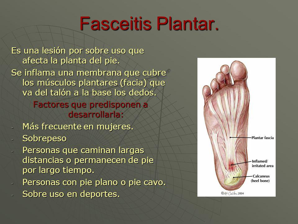 Fasceitis Plantar. Es una lesión por sobre uso que afecta la planta del pie. Se inflama una membrana que cubre los músculos plantares (facia) que va d