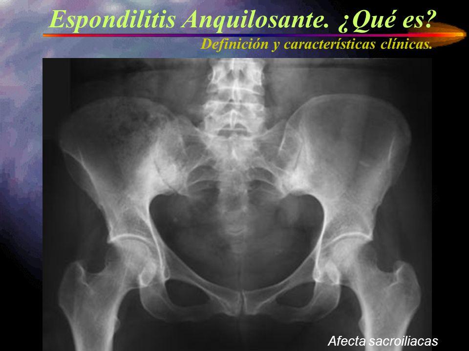 Espondilitis Anquilosante. ¿Qué es? Definición y características clínicas. Afecta sacroiliacas