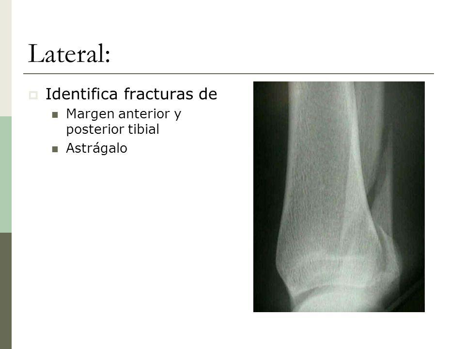Lateral: Identifica fracturas de Margen anterior y posterior tibial Astrágalo