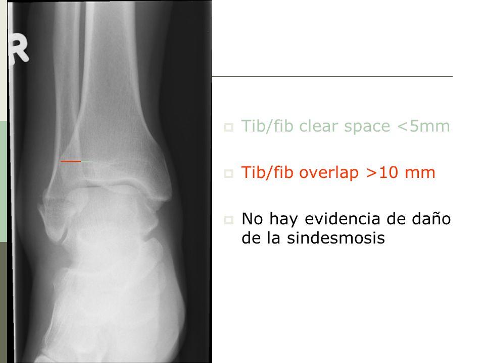 Tib/fib clear space <5mm Tib/fib overlap >10 mm No hay evidencia de daño de la sindesmosis