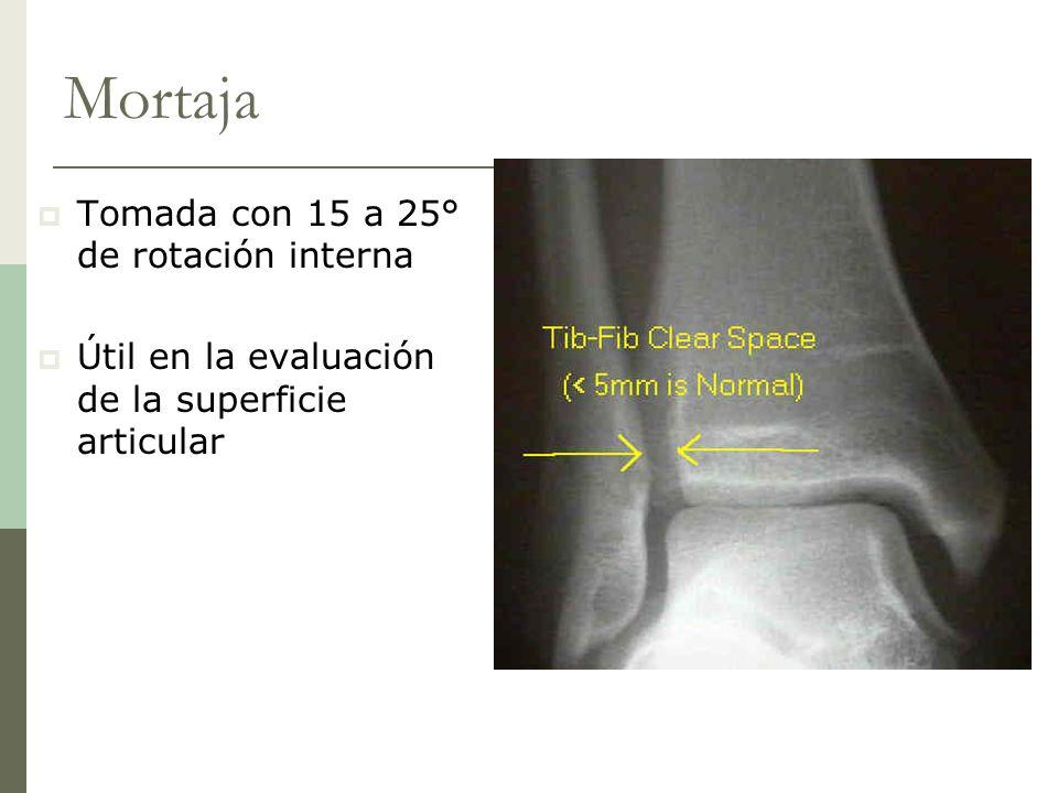 Mortaja Tomada con 15 a 25° de rotación interna Útil en la evaluación de la superficie articular