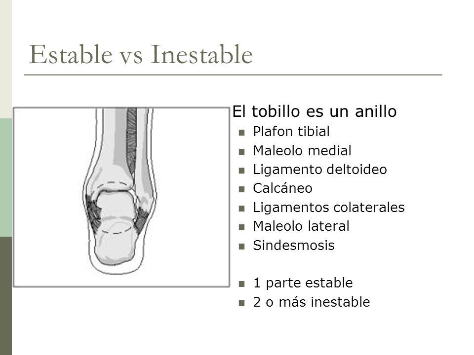 Estable vs Inestable El tobillo es un anillo Plafon tibial Maleolo medial Ligamento deltoideo Calcáneo Ligamentos colaterales Maleolo lateral Sindesmo