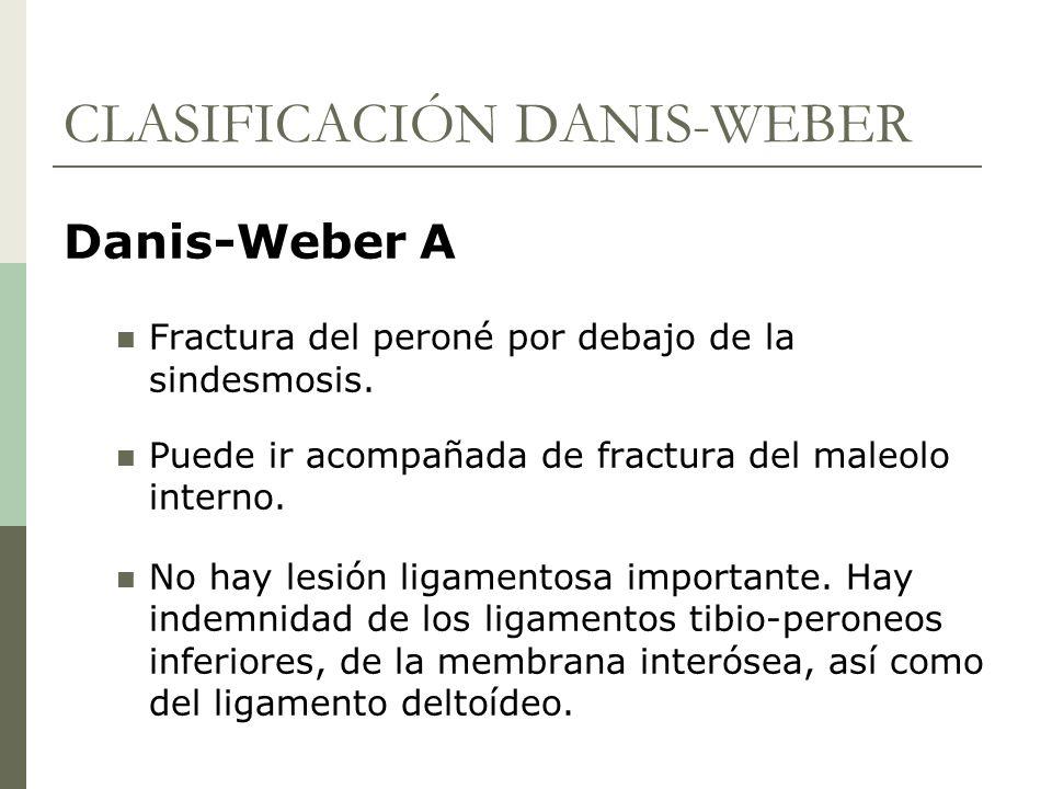CLASIFICACIÓN DANIS-WEBER Danis-Weber A Fractura del peroné por debajo de la sindesmosis. Puede ir acompañada de fractura del maleolo interno. No hay