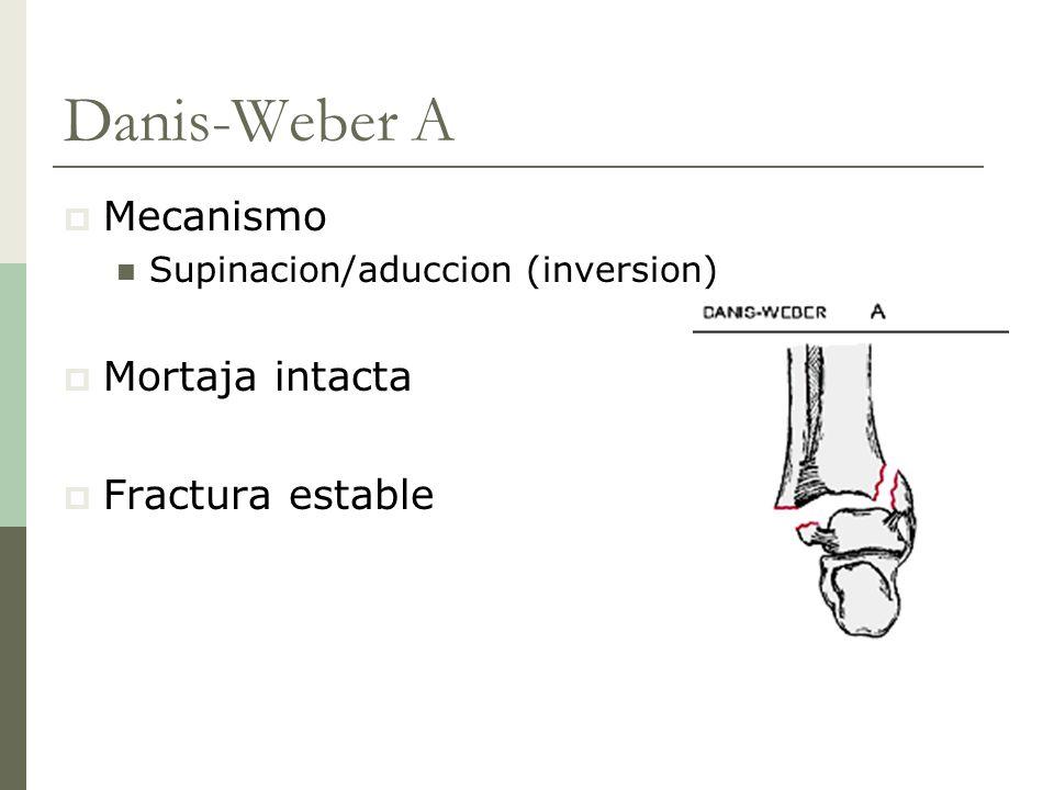 Danis-Weber A Mecanismo Supinacion/aduccion (inversion) Mortaja intacta Fractura estable