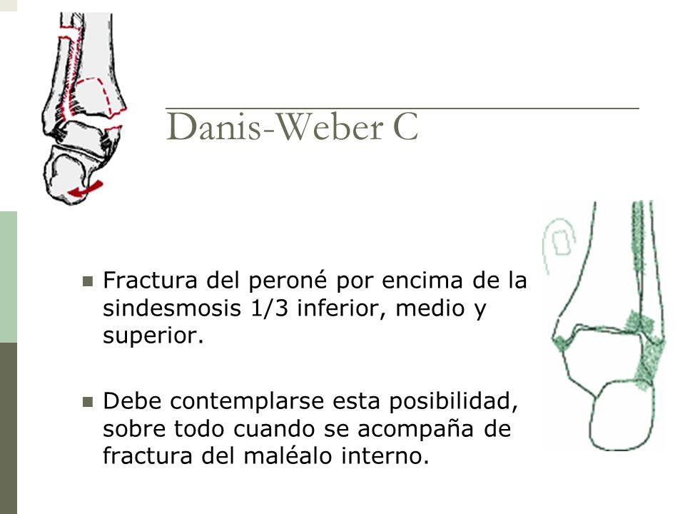 Danis-Weber C Fractura del peroné por encima de la sindesmosis 1/3 inferior, medio y superior. Debe contemplarse esta posibilidad, sobre todo cuando s