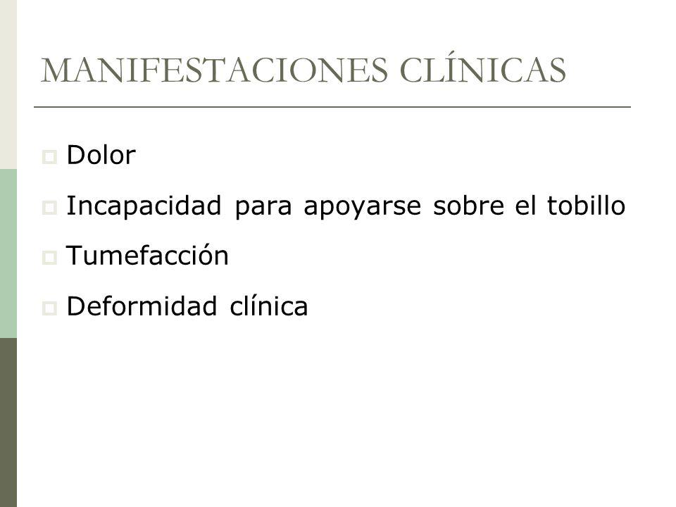 MANIFESTACIONES CLÍNICAS Dolor Incapacidad para apoyarse sobre el tobillo Tumefacción Deformidad clínica