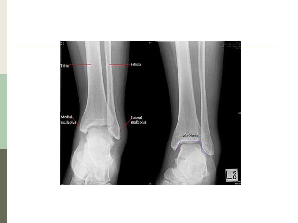 Danis-Weber Define la fractura en base al nivel de la fractura del peroné: A= Debajo de la articulación tibioastragalina No hay daño a la sindesmosis Estable (generalmente) B= Al nivel de la articulación tibioastragalina Daño parcial a la sindesmosis C= Arriba de la articulación tibioastragalina separa la sindesmosis Inestable