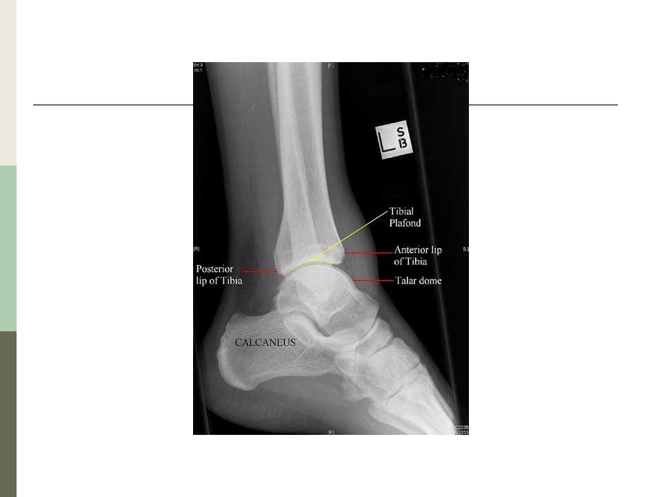 EPIDEMIOLOGÍA Las fracturas de tobillo son lesiones comunes, mayormente causadas por el giro del tobillo hacia adentro o hacia fuera.