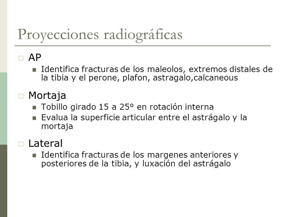 Proyecciones radiográficas AP Identifica fracturas de los maleolos, extremos distales de la tibia y el perone, plafon, astragalo,calcaneous Mortaja To