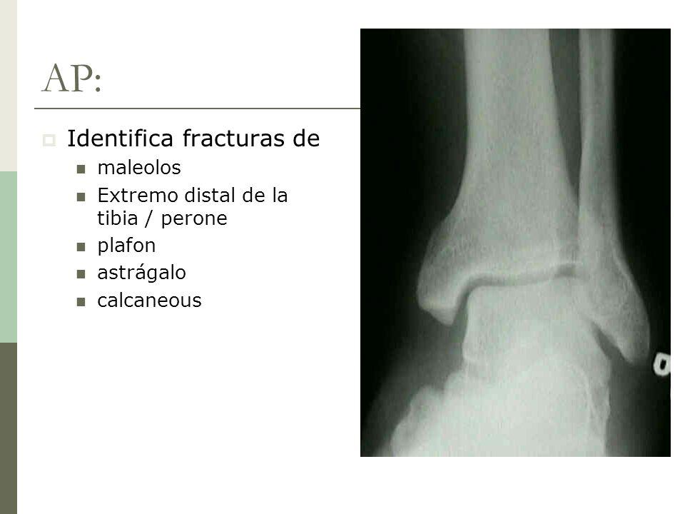 Estatutos de Ottawa Ottawa Ankle Rules: Ordenar rayos X si ocurre trauma severo al tobillo y 1 ó mas de las siguientes: 55 años o más Incapacidad de soportar peso en la articulación (inmediatamente y en ER, 4 pasos) Dolor a la palpación sobre los maleolos Sensibilidad ~100% Especificidad ~40%