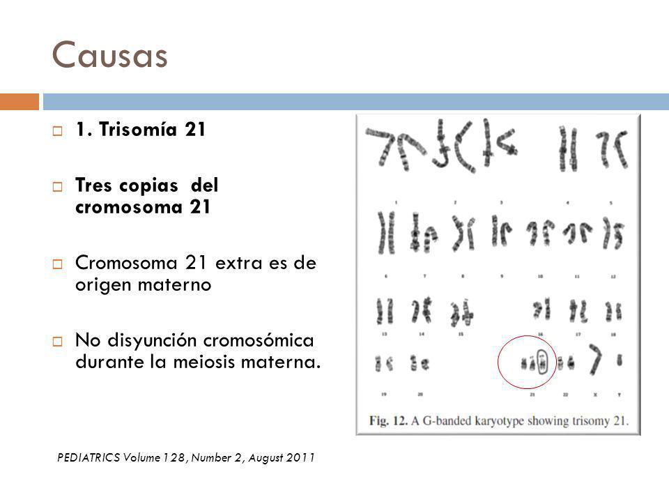 Causas 1. Trisomía 21 Tres copias del cromosoma 21 Cromosoma 21 extra es de origen materno No disyunción cromosómica durante la meiosis materna. PEDIA