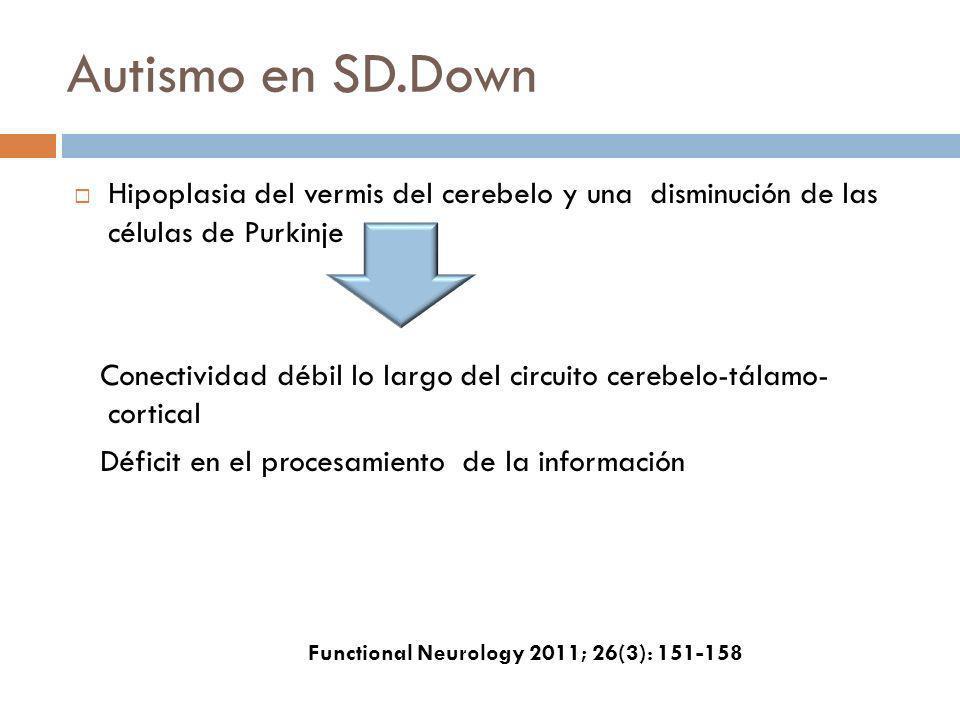 Autismo en SD.Down Hipoplasia del vermis del cerebelo y una disminución de las células de Purkinje Conectividad débil lo largo del circuito cerebelo-t
