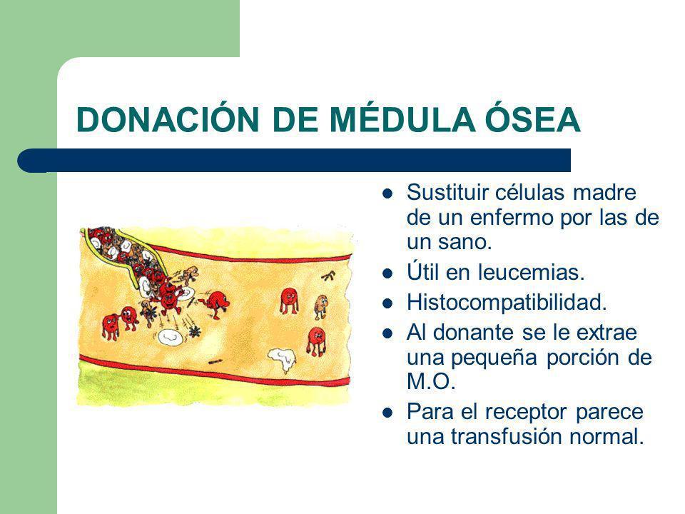 DONACIÓN DE MÉDULA ÓSEA Sustituir células madre de un enfermo por las de un sano. Útil en leucemias. Histocompatibilidad. Al donante se le extrae una