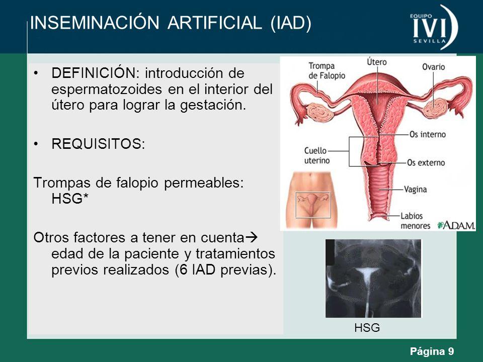 INSEMINACIÓN ARTIFICIAL (IAD) DEFINICIÓN: introducción de espermatozoides en el interior del útero para lograr la gestación. REQUISITOS: Trompas de fa