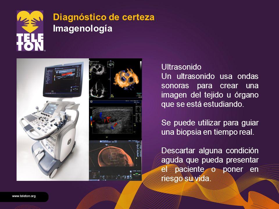 www.teleton.org Diagnóstico de certeza Imagenología Ultrasonido Un ultrasonido usa ondas sonoras para crear una imagen del tejido u órgano que se está