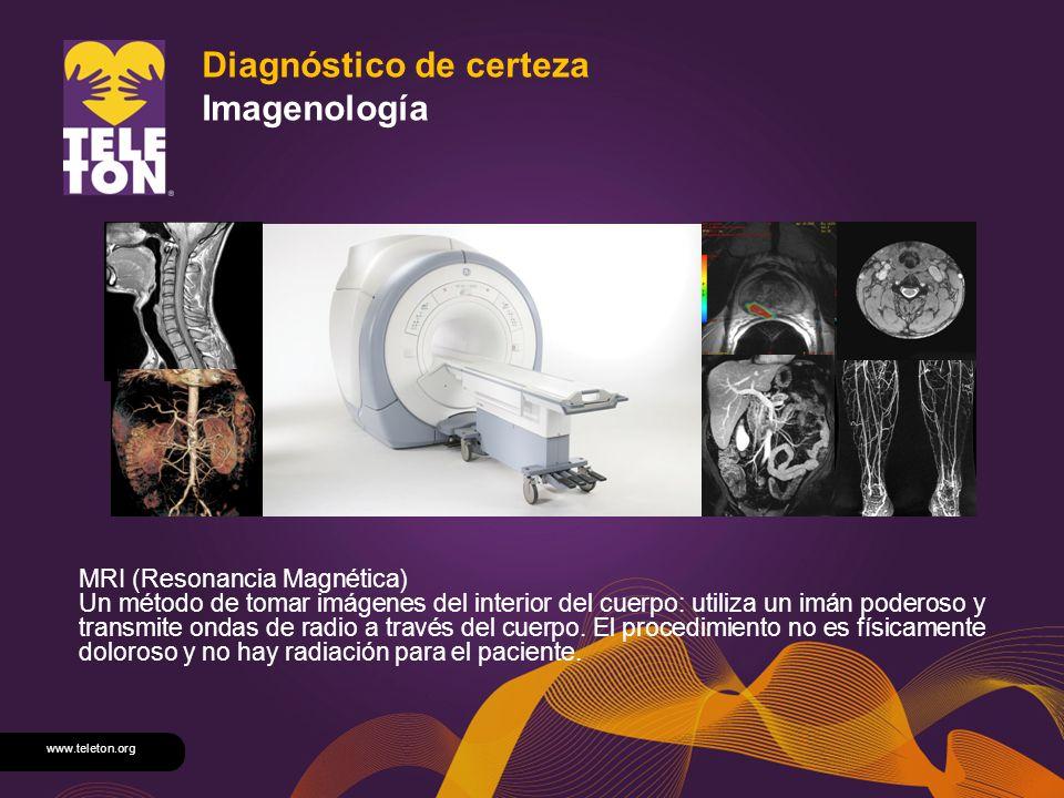www.teleton.org Diagnóstico de certeza Imagenología MRI (Resonancia Magnética) Un método de tomar imágenes del interior del cuerpo: utiliza un imán po