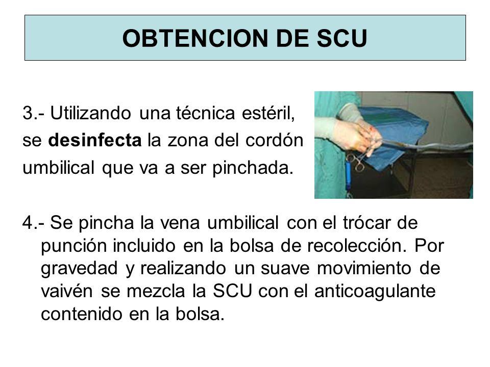 OBTENCION DE SCU 3.- Utilizando una técnica estéril, se desinfecta la zona del cordón umbilical que va a ser pinchada. 4.- Se pincha la vena umbilical
