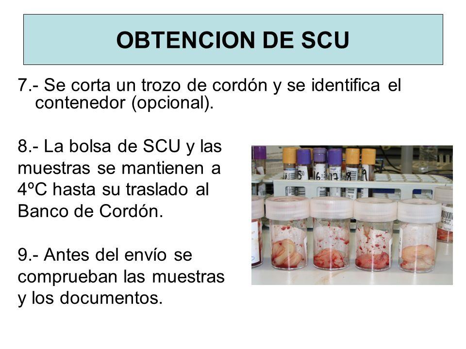 OBTENCION DE SCU 7.- Se corta un trozo de cordón y se identifica el contenedor (opcional). 8.- La bolsa de SCU y las muestras se mantienen a 4ºC hasta