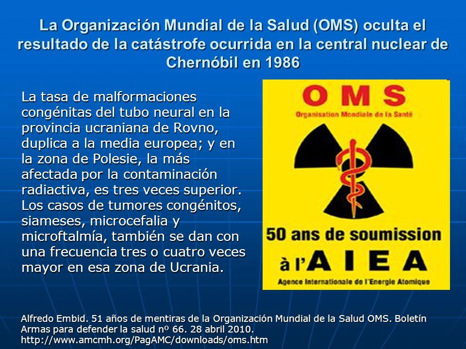La Organización Mundial de la Salud (OMS) oculta el resultado de la catástrofe ocurrida en la central nuclear de Chernóbil en 1986 La tasa de malforma