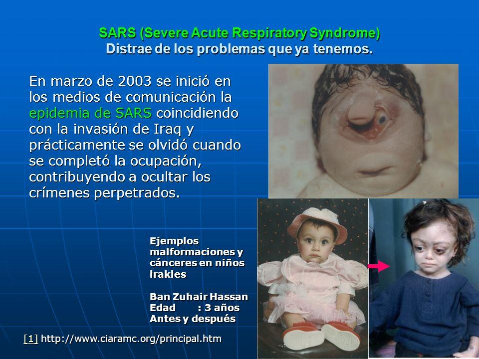 SARS (Severe Acute Respiratory Syndrome) Distrae de los problemas que ya tenemos. En marzo de 2003 se inició en los medios de comunicación la epidemia