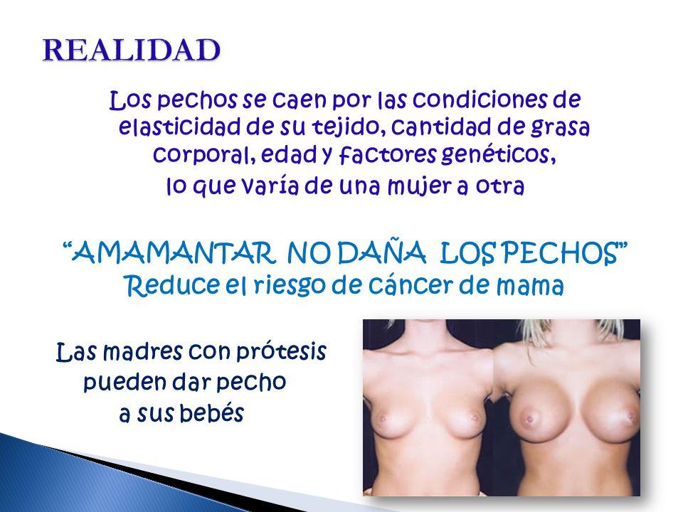 Los pechos se caen por las condiciones de elasticidad de su tejido, cantidad de grasa corporal, edad y factores genéticos, lo que varía de una mujer a otra AMAMANTAR NO DAÑA LOS PECHOS Reduce el riesgo de cáncer de mama Las madres con prótesis pueden dar pecho a sus bebés