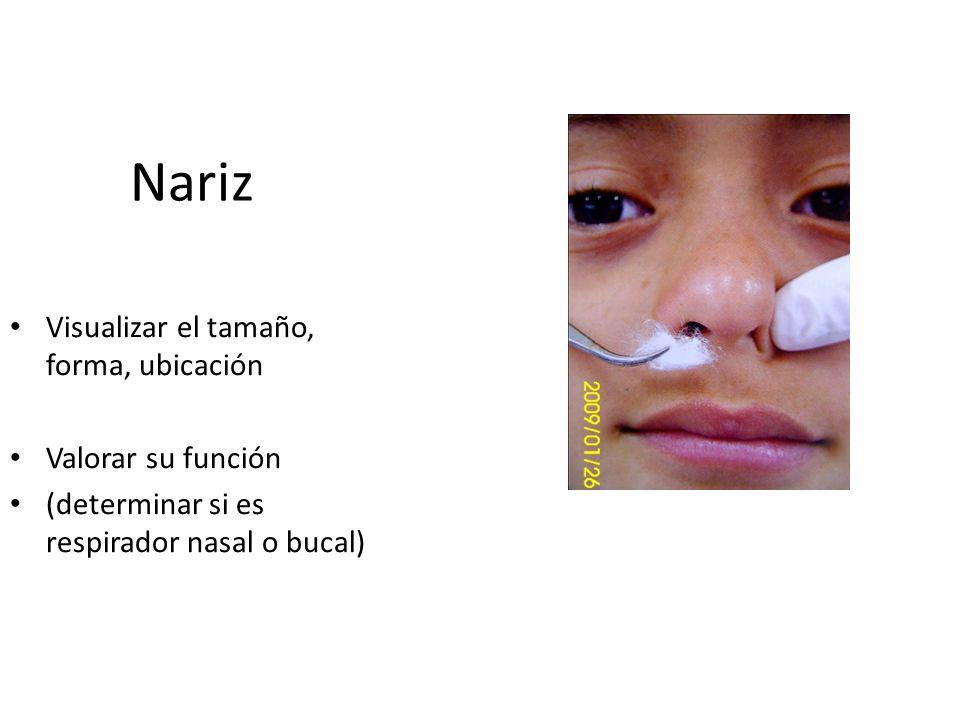 Nariz Visualizar el tamaño, forma, ubicación Valorar su función (determinar si es respirador nasal o bucal)