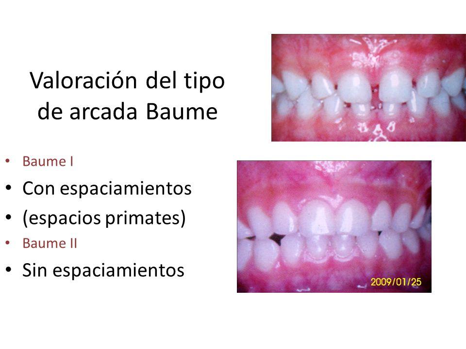 Valoración del tipo de arcada Baume Baume I Con espaciamientos (espacios primates) Baume II Sin espaciamientos