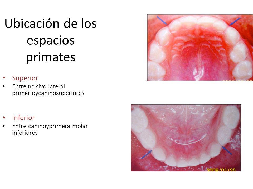 Ubicación de los espacios primates Superior Entreincisivo lateral primarioycaninosuperiores Inferior Entre caninoyprimera molar inferiores