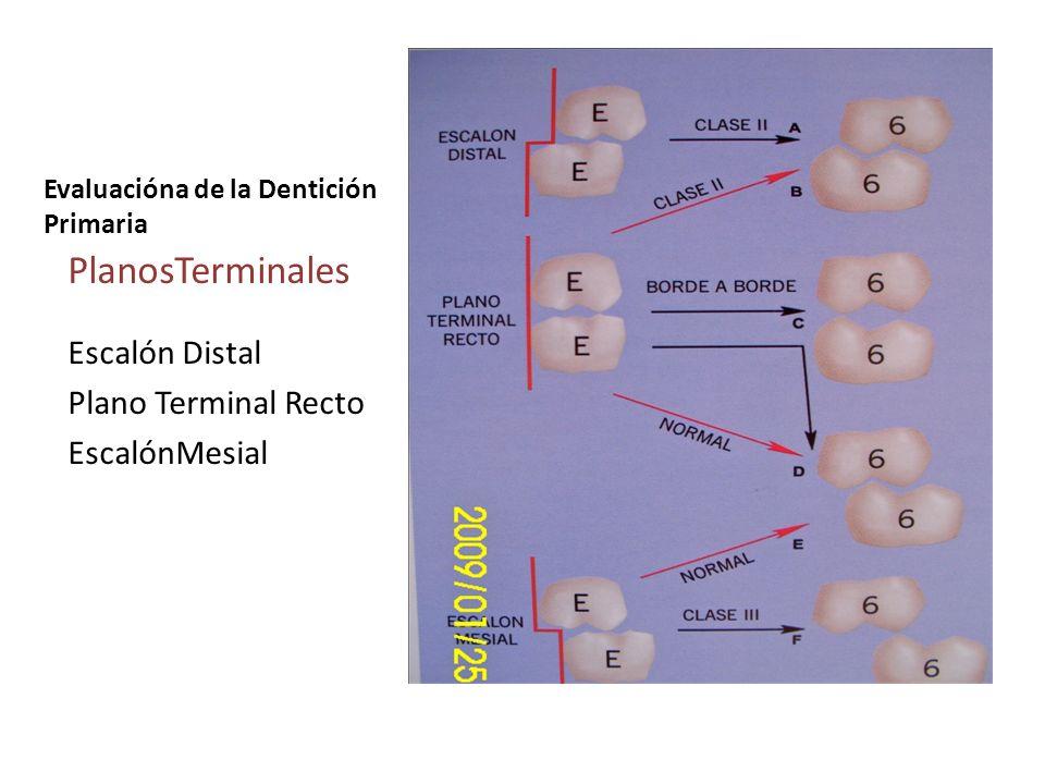 Evaluacióna de la Dentición Primaria PlanosTerminales Escalón Distal Plano Terminal Recto EscalónMesial