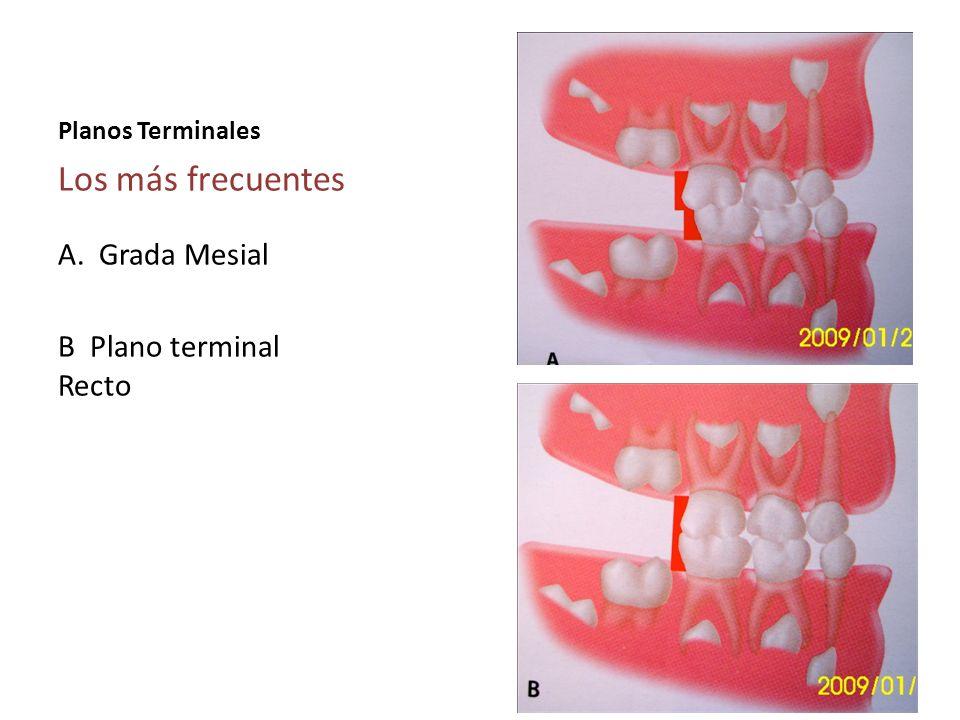 Planos Terminales Los más frecuentes A. Grada Mesial B Plano terminal Recto