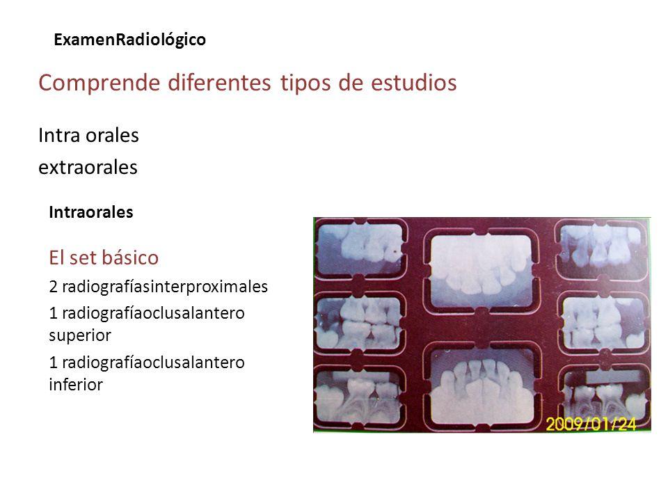 ExamenRadiológico Comprende diferentes tipos de estudios Intra orales extraorales Intraorales El set básico 2 radiografíasinterproximales 1 radiografí