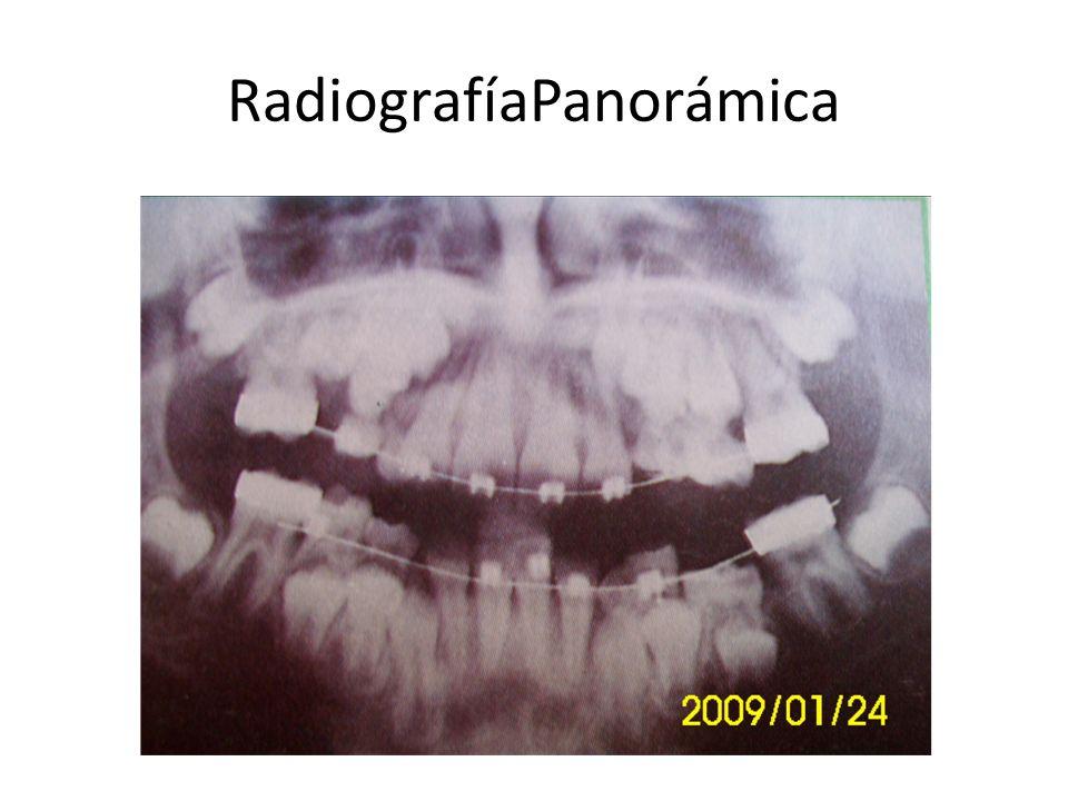 RadiografíaPanorámica
