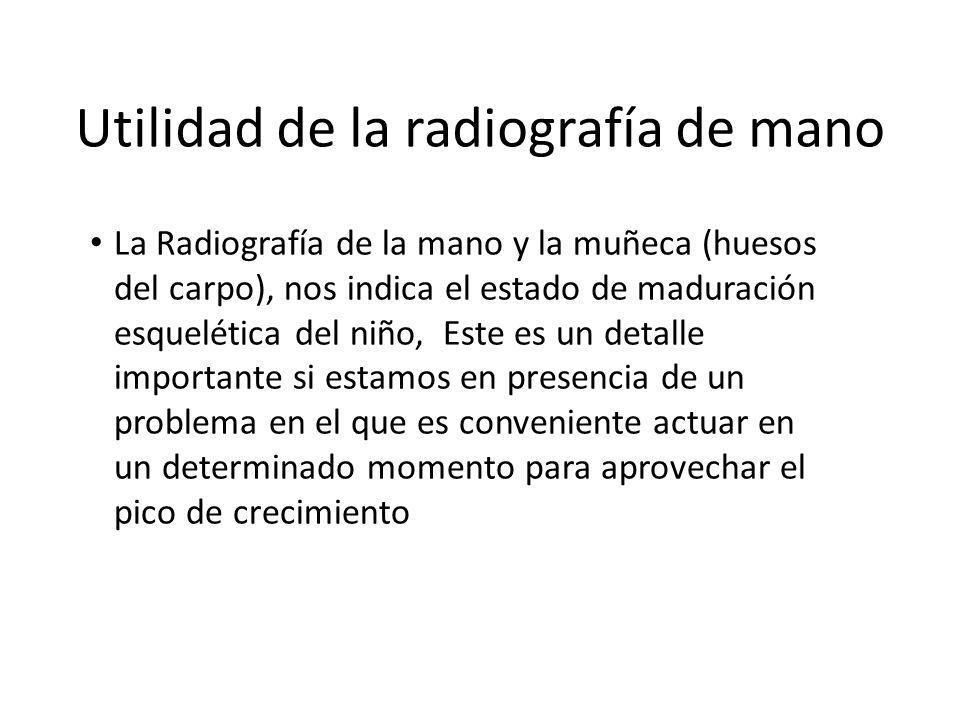 Utilidad de la radiografía de mano La Radiografía de la mano y la muñeca (huesos del carpo), nos indica el estado de maduración esquelética del niño,