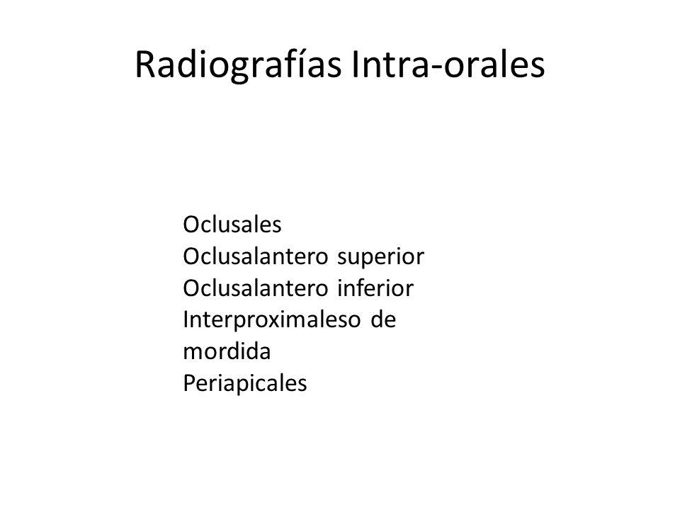 Radiografías Intra-orales Oclusales Oclusalantero superior Oclusalantero inferior Interproximaleso de mordida Periapicales
