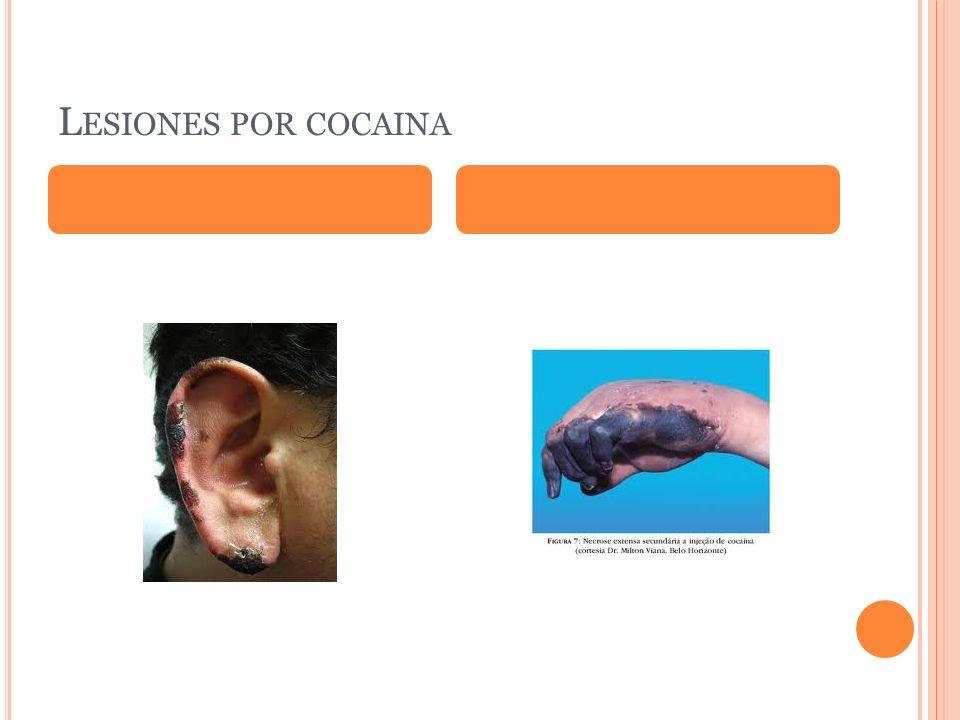 L ESIONES POR COCAINA