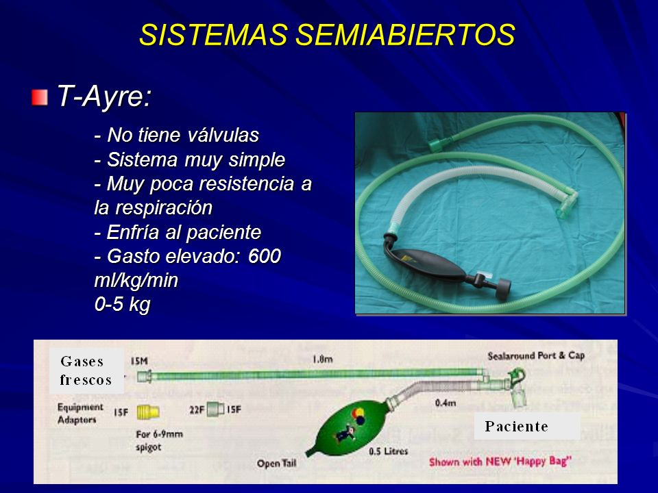 SISTEMAS SEMIABIERTOS T-Ayre: - No tiene válvulas - Sistema muy simple - Muy poca resistencia a la respiración - Enfría al paciente - Gasto elevado: 600 ml/kg/min 0-5 kg
