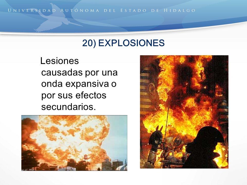 20) EXPLOSIONES Lesiones causadas por una onda expansiva o por sus efectos secundarios.