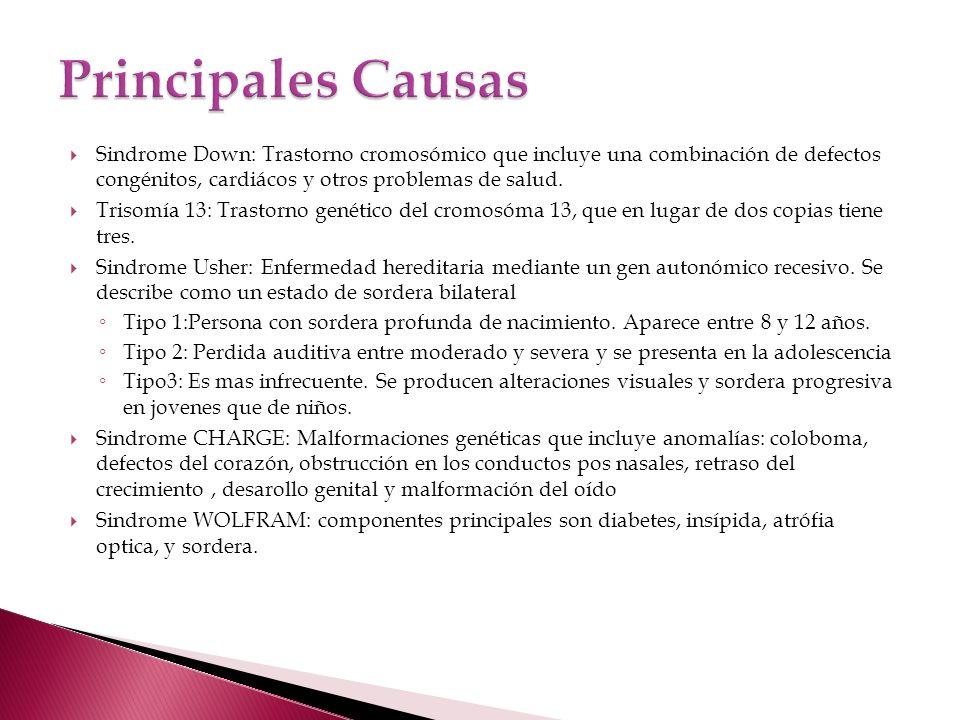 Sindrome Down: Trastorno cromosómico que incluye una combinación de defectos congénitos, cardiácos y otros problemas de salud.