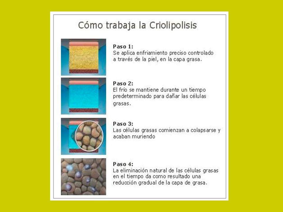 ¿En qué zonas se puede aplicar la criolipolisis.