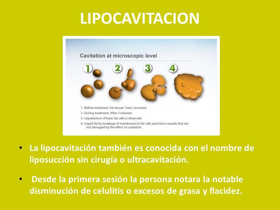 La Lipocavitación consiste en el uso del ultrasonido a baja frecuencia para ocasionar la generación de micro burbujas con el fin de que éstas implosionen y de esta manera rompan las paredes del tejido adiposo.