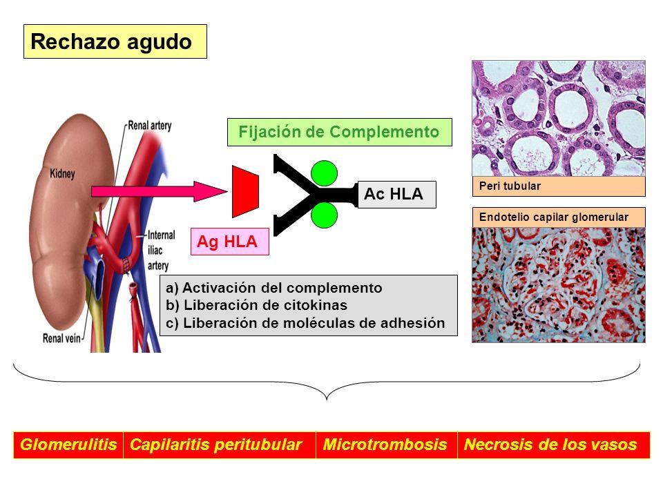 Rechazo agudo Ag HLA Endotelio capilar glomerular Peri tubular Ac HLA Fijación de Complemento a) Activación del complemento b) Liberación de citokinas